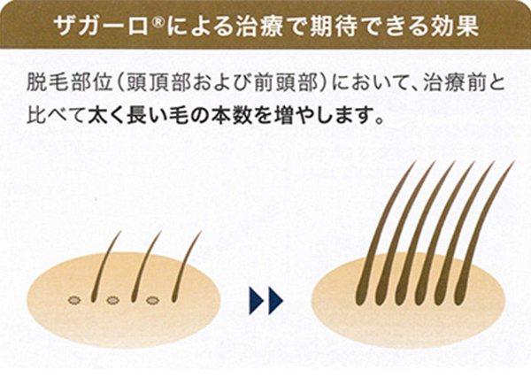 【画像】男性型脱毛症治療薬